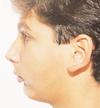 A retruding chin